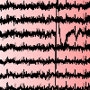 EEG with color coding of dipole strength.